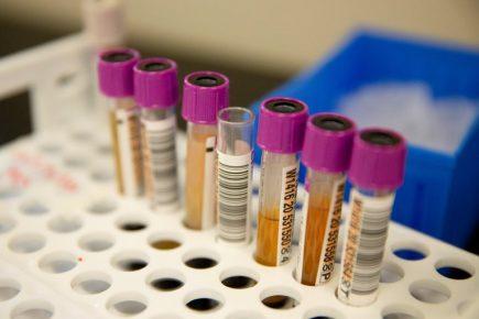 Instituto Nacional de Salud confirma primer caso de  nueva variante del Sars-CoV-2 en Perú