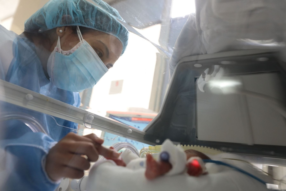 Arequipa: nacen niños siameses en el hospital Goyeneche