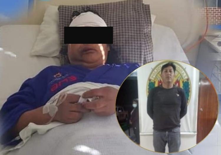 Arequipa: prisión preventiva a sujeto que golpeó con combo en la cabeza a su exconviviente