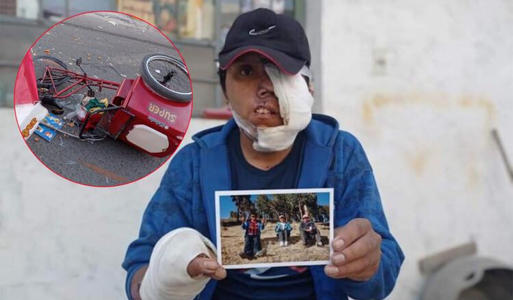 Arequipa: Joven heladero atropellado pide apoyo a población para reconstrucción de rostro