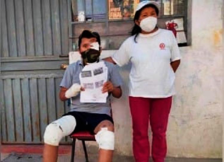 Arequipa: heladero atropellado pide apoyo de instituciones para viajar a Lima